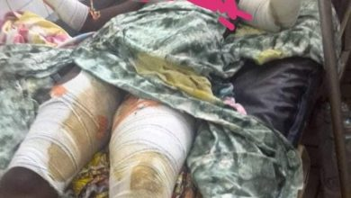 Photo of Cameroon: Government abandons victims of Yaounde bomb explosion.